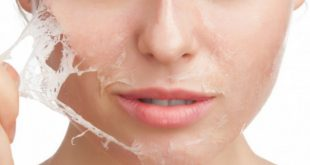 In skin care, doctors use chemical peeling as a procedure to remove sun damaged pigmented and wrinkled skin by peeling it with chemicals. In skin care, doctors use chemical...
